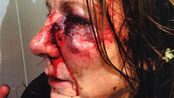 Philippa May suffered severe facial injuries in the violent robbery in west London (Metropolitan Police/PA Wire)