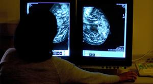Researchers believe they now understand why drugs which halt oestrogen production are ineffective in some breast cancer patients