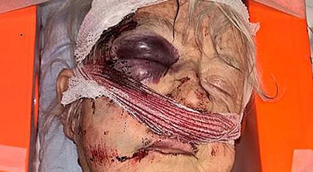 Police have issued this photo of a 75-year-old woman after she was attacked as she walked in Eastville Park in the Fishponds area of Bristol between 11.45am and 12.15pm on Monday January 23