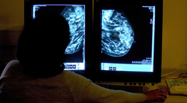 Some generic drugs prescribed for breast cancer are over-priced, specialist says.