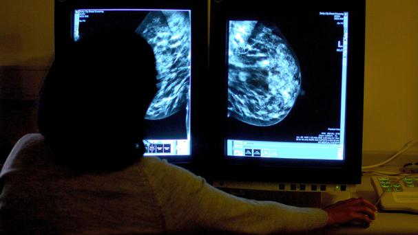 There are around 45,000 new cases of breast cancer each year in England
