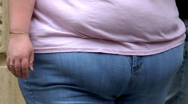 Photo of the waist of an obese woman. Being obese is strongly linked to 11 different cancers, scientists have confirmed.
