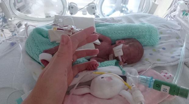 Abiageal Peters who was born at just 23 weeks gestation at St Peter's Hospital in Chertsey (St George's University Hospitals NHS Foundation Trust/PA)