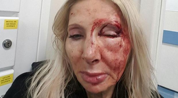The victim, who does not want to be named, has released a picture of her injuries as part of a police appeal for information (Metropolitan Police/PA)