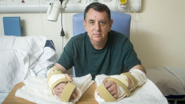 The UK's first double hand transplant patient Chris King after his surgery at Leeds General Infirmary