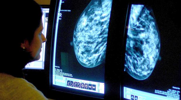 Scientists developed a prototype drug which could lead the way to the next generation of treatment for breast cancer