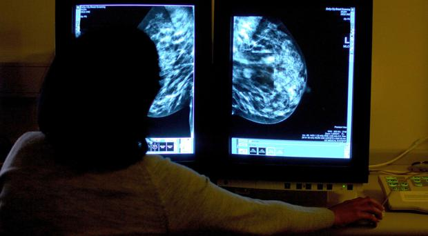 31% of breast cancer patients diagnosed in A&E had visited their GP three or more times