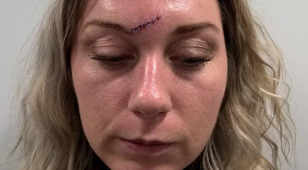 Kirsty Rustman was scarred for life in a glass attack (Northumbria Police/PA)