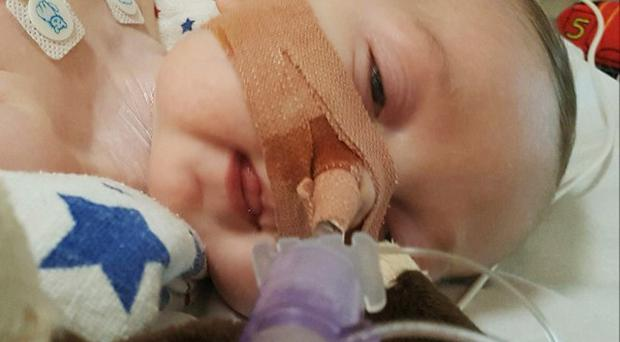 Charlie Gard is terminally ill (Family handout/PA)
