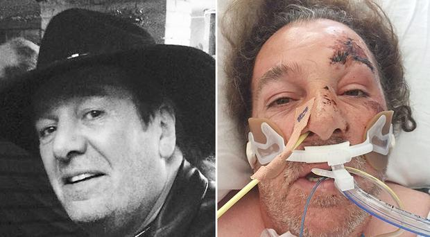 Before and after pictures of attack victim Colin Flett (Metropolitan Police/PA)