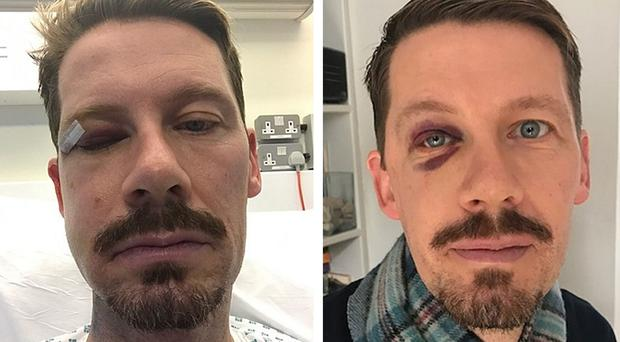 Gordon Maxwell was left needing reconstructive surgery to his cheek (Metropolitan Police/PA)