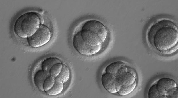 Early human embryos (OHSU/PA)
