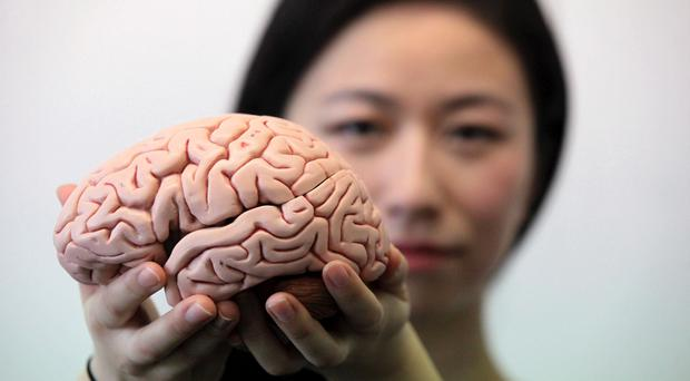 Early signs of Alzheimer's can be seen in the brains of people who suffer from disturbed sleep, research has shown. (Mike Urwin/Newcastle University/PA)