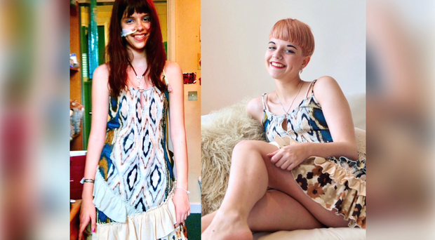 Connie Inglis, who has used social media to highlight her recovery from anorexia (BBC/PA Wire)