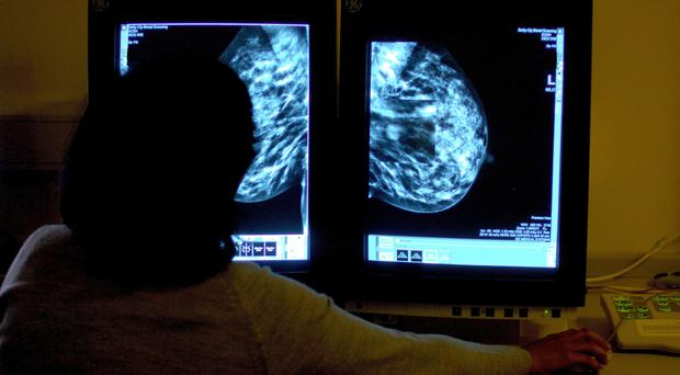A consultant studies a mammogram. New research shows having both breasts removed improves survival for healthy women carrying a breast cancer gene. (Rui Vieira/PA)