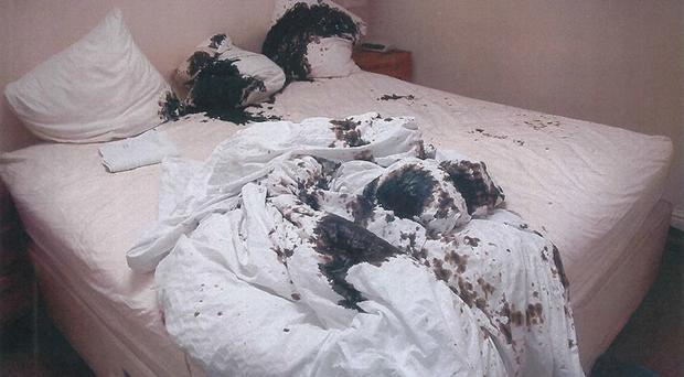 The bed Mark van Dongen was lying in when he was attacked with sulphuric acid by Berlinah Wallace (Avon and Somerset Police/PA)