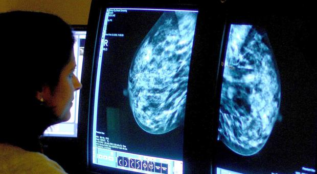 A consultant analyses a mammogram image for signs of breast cancer. (Rui Vieira/PA)