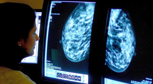 A consultant analysing a mammogram, as researchers find a higher BMI is associated with a lower risk of breast cancer before the menopause (Rui Vieira/PA)