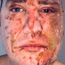 Andrew Walker was attacked with acid by a complete stranger in January (Metropolitan Police/PA)