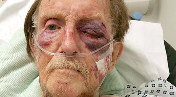 Arthur Gumbley died after suffering a badly bruised face and body when he was robbed in his own home (Staffordshire Police/PA)