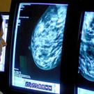 There are three national cancer screening programmes in England (PA)