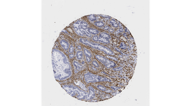 A microscope image of a human colorectal adenocarcinoma showing the fibroblasts (brown) surrounding the cancer cells (blue), protecting them from the immune system (PA/Medical Research Council).