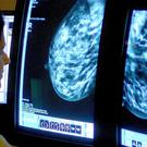 Women who received one false positive result after a mammogram are two times as likely to develop breast cancer, a study has said (Rui Vieira/PA)