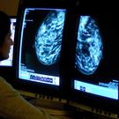 It is hoped the new guidelines will help to identify symptoms of cancer at an earlier stage (Rui Vieira/PA)