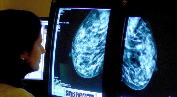 A new drug combination could benefit breast cancer patients (Rui Vieira/ PA)