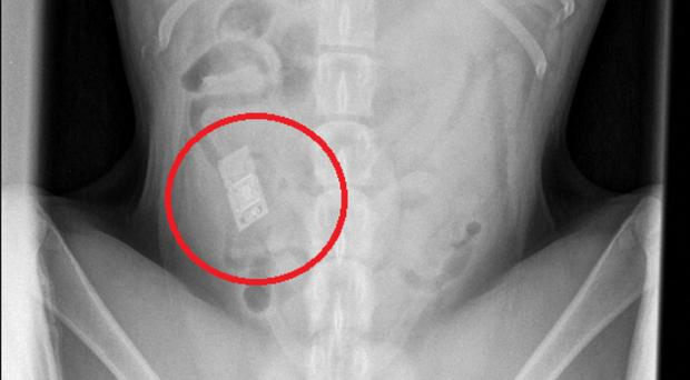 Rocco's X-ray showing the Nintendo DS game he had swallowed (PDSA/PA)