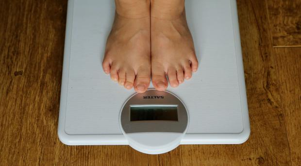 There has been a rise in the number of hospital admissions where obesity is a factor (PA).