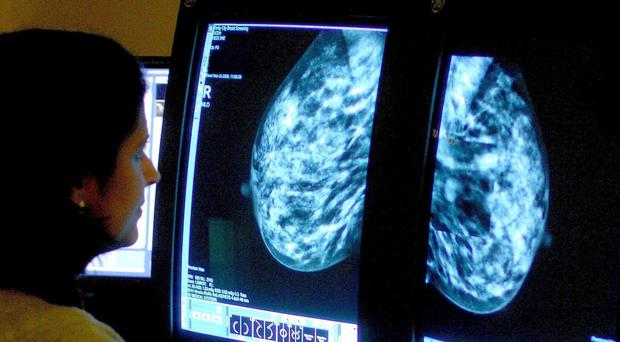 A new study found no link between night shifts and breast cancer risk (Rui Vieira/PA)