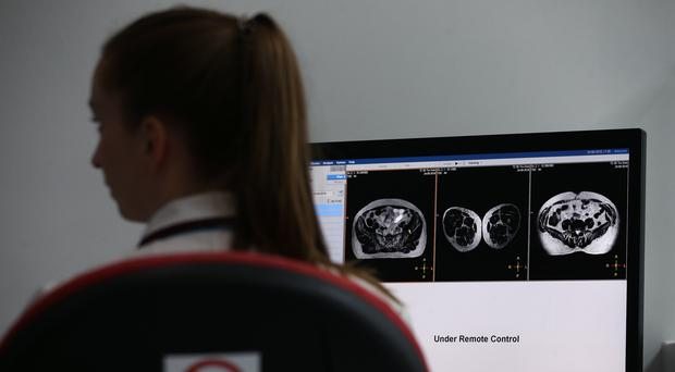 Investment will be made in the detection of prostate cancer (Yui Mok/PA)
