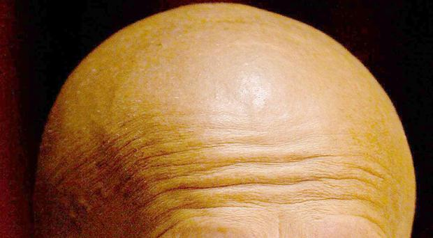 A new treatment for baldness could be on the horizon (Gareth Copley/PA)