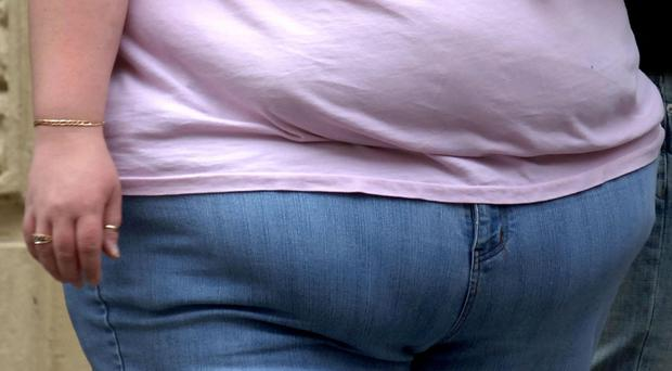 Health experts generally agree that sugar taxes could help reduce obesity (Clara Molden/PA)