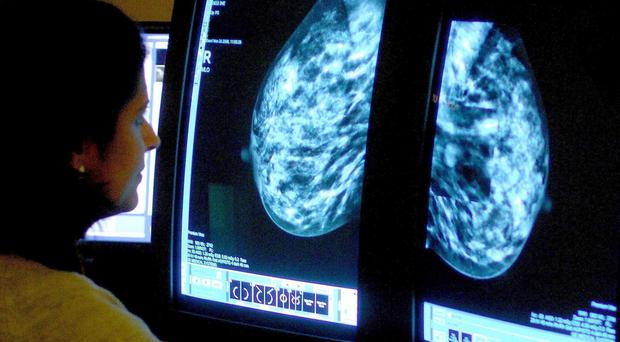 Only one in three women attend NHS cancer screening in their 60s, research suggests (PA).