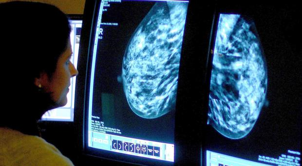 Breast cancer deaths are falling, Cancer Research UK says (PA)