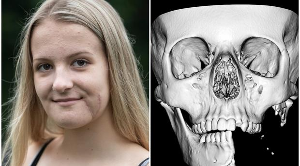 Emily Eccles and a CT scan of her injured jaw (Sheffield Children's NHS Foundation/PA