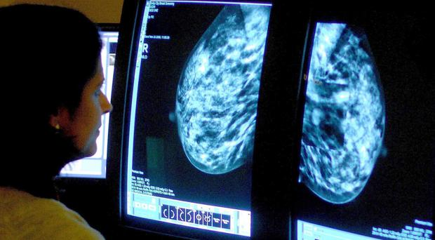 Women with incurable breast cancer reported going for repeated GP consultations before a diagnosis (Rui Vieira/PA)