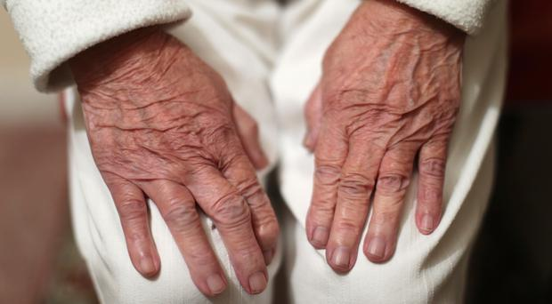 Alzheimer's disease is the most common cause of dementia (Yui Mok/PA)
