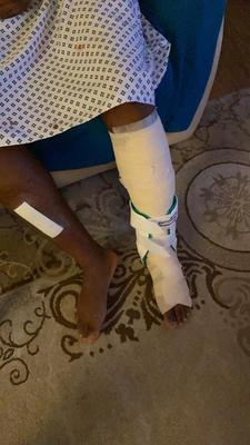 NHS worker K suffered a broken leg in the attack (Family handout/PA)