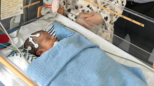 Baby Oscar Parodi is the first in the world to be given a cannabis-derived drug as part of a clinical trial for infants born with hypoxic-ischemic encephalopathy (NNUH/PA)