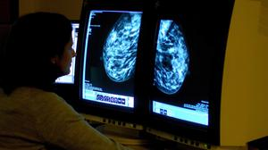 A consultant analyses a mammogram showing a woman's breast (Rui Vieira/PA)