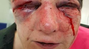 The woman suffered a broken nose and jaw after being violently robbed at home (Northamptonshire Police/PA)