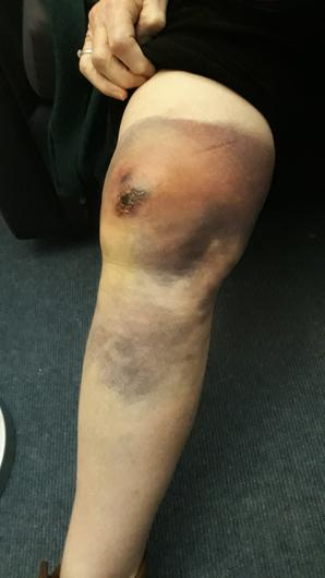 The pensioner's knee was badly injured in the attack (Northumbria Police/PA)
