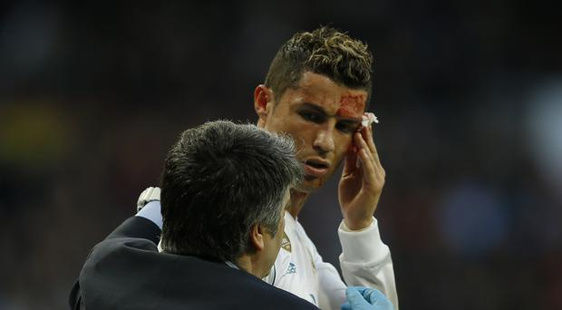 Cristiano Ronaldo checks bloody face on doctor's mobile