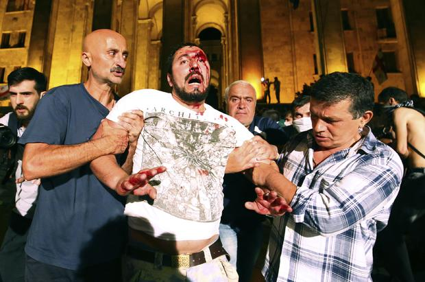 Protesters help a wounded man after clashes with riot police (Zurab Tsertsvadze/AP)