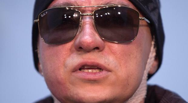 Sergei Filin suffered serious burns in an acid attack (AP)