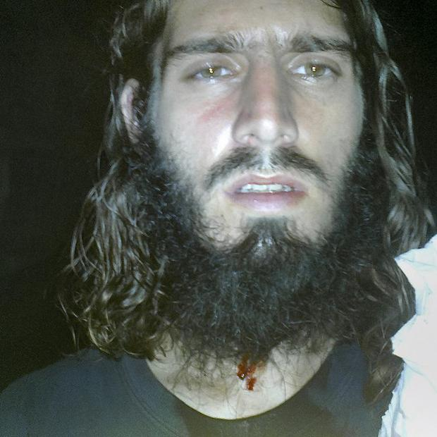 American jihadi Omar Hammami posted this picture on twitter, after what he says was a failed bid to kill him (AP Photo/Internet)