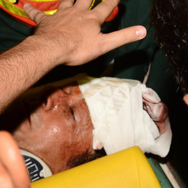 The injured Imran Khan is taken to hospital after the fall (AP)